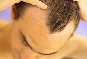 Маски для волос с димексидом отзывы как правильно наносить на чистую